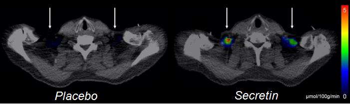 Positron emission tomography images showing glucose tracer uptake after placebo and secretin infusions