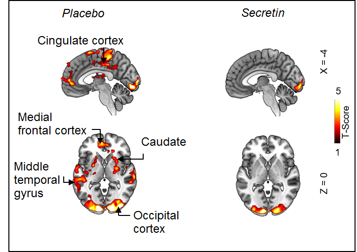 fMRI images, showing diminished activity of reward circuits