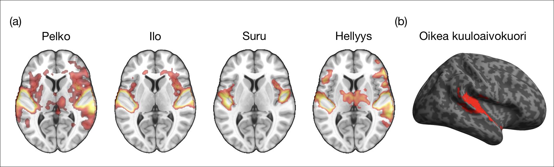 Musiikin Vaikutus Aivoihin
